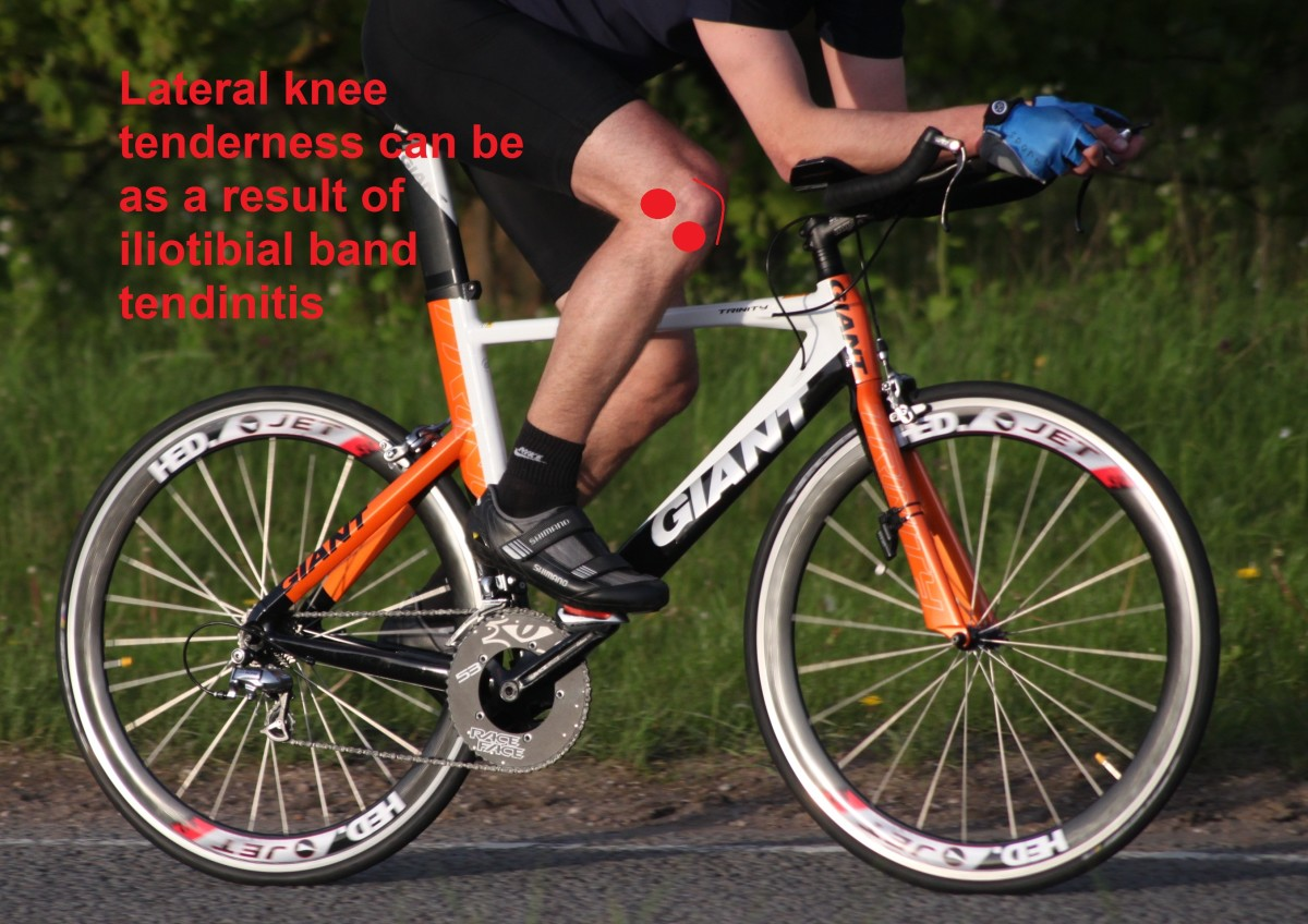 Iliotibial Band Tendinosis from cycling often features tenderness laterally above and below the kneecap (pictured)