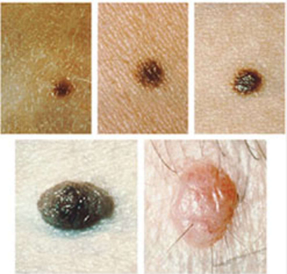 Examples of common moles. Image courtesy Cancer.gov