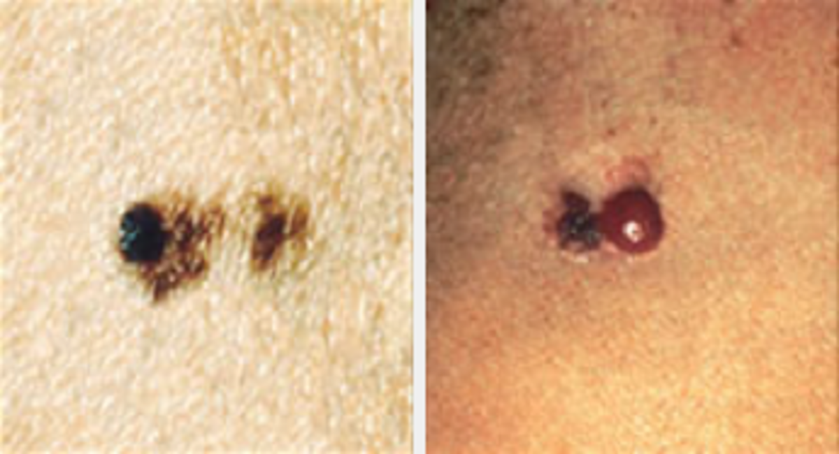 More examples of melanoma appearance. Image courtesy Cancer.gov