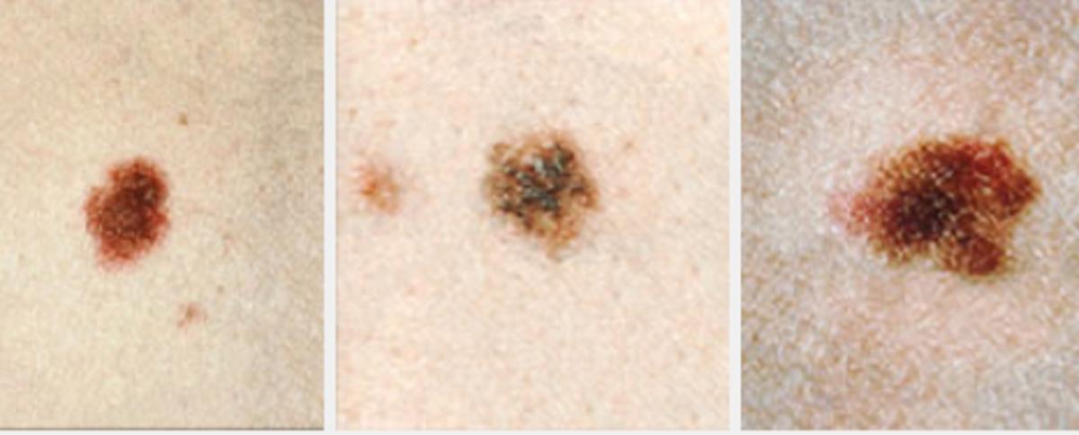 Dysplastic nevi examples. Image courtesy Cancer.gov