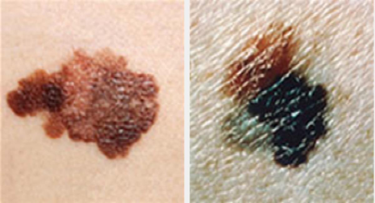 What melanoma can look like. Image courtesy Cancer.gov