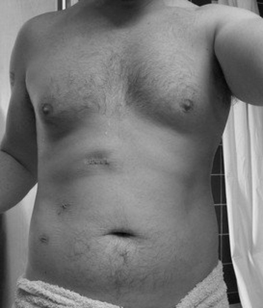 Scars after gallbladder removal.