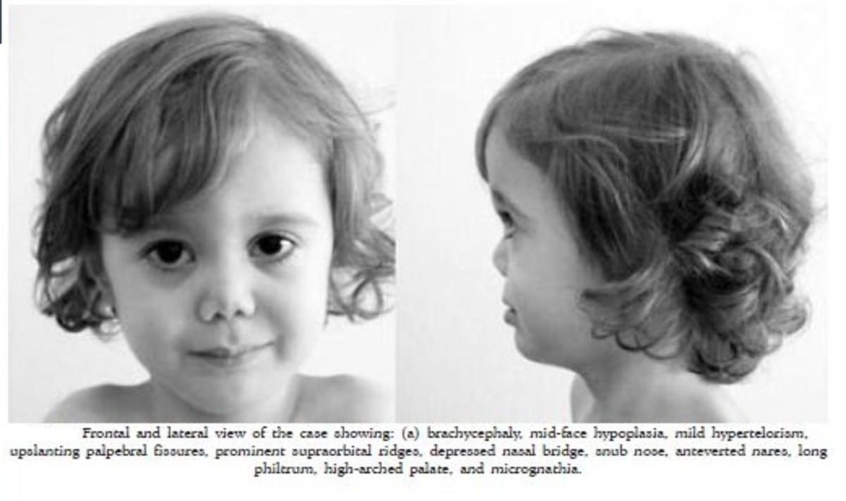 stickler syndrome | hubpages, Cephalic Vein