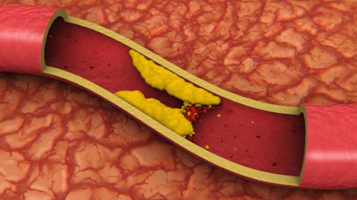 Natural Ways to Remove Arterial Plaque