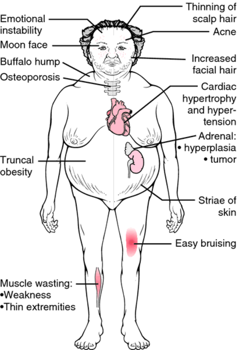 cushing-syndrome-disease-causes-and-symtpoms