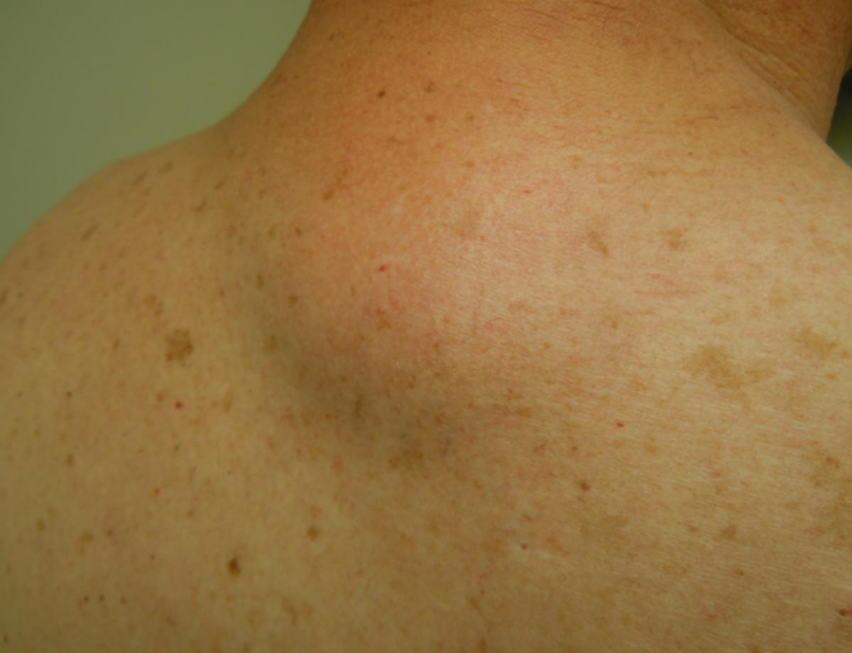 Lipoma (back of neck)