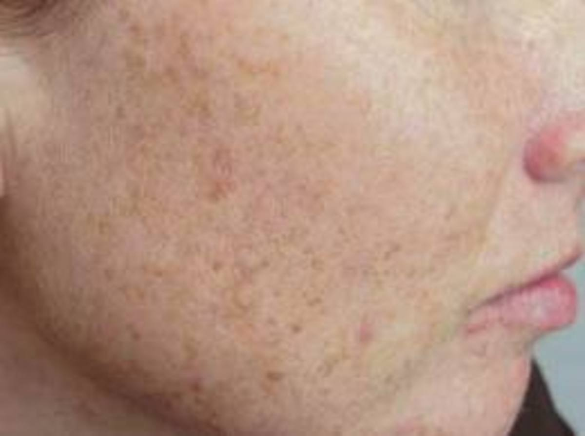 Know the causes and remedies for Age Spots