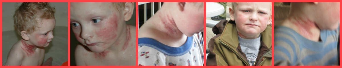 We put a lot of steroids on Kline's neck and it was one of his worst spots during withdrawal.