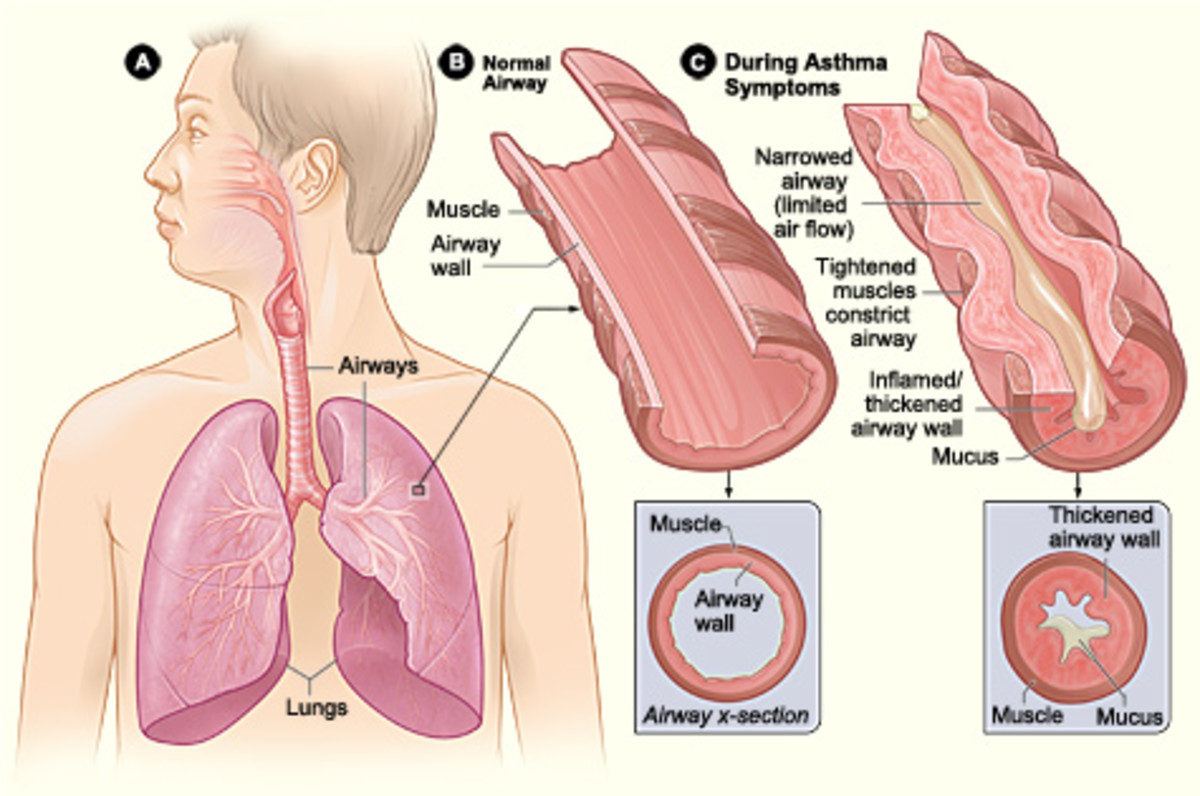 airway-resistance-and-flow-dynamics