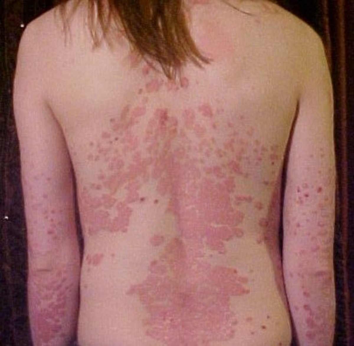 A Variety of Skin Disorders