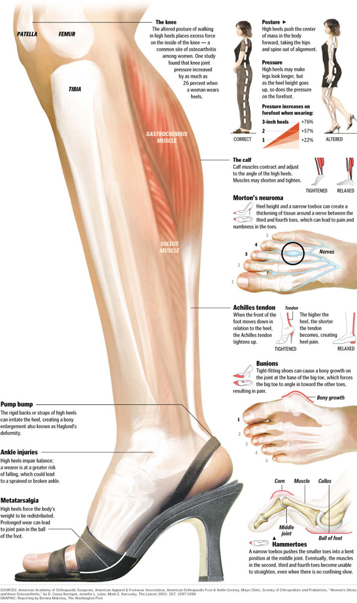 Knowledge is power! Take a closer look at this infographic to see the impact of high heeled shoes on legs.
