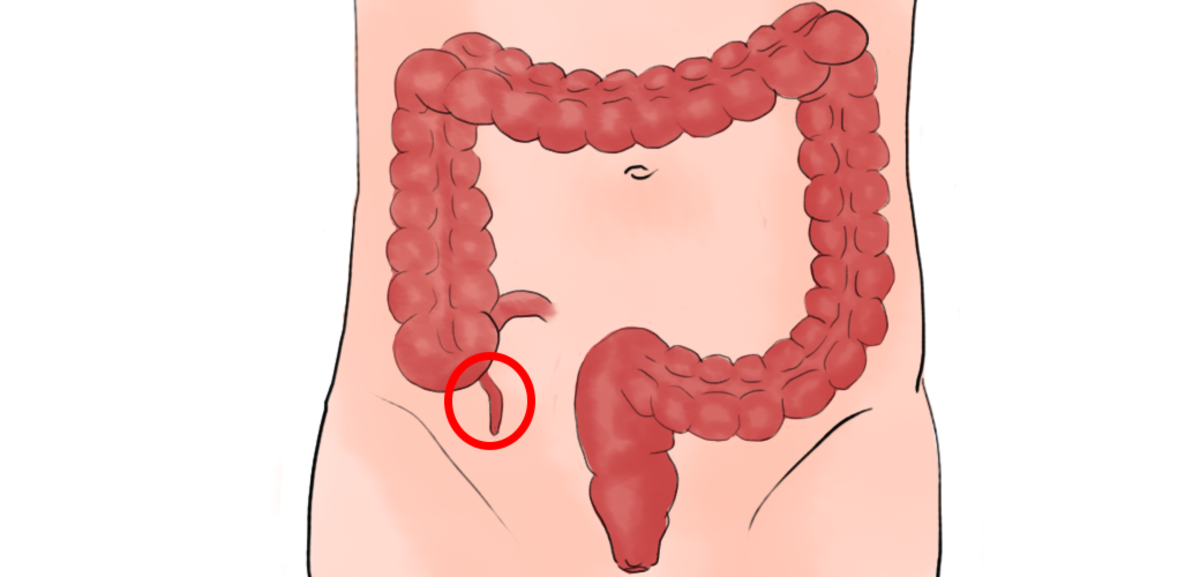 Appendicitis is an inflamed appendix and can cause abdominal tenderness among other symptoms.