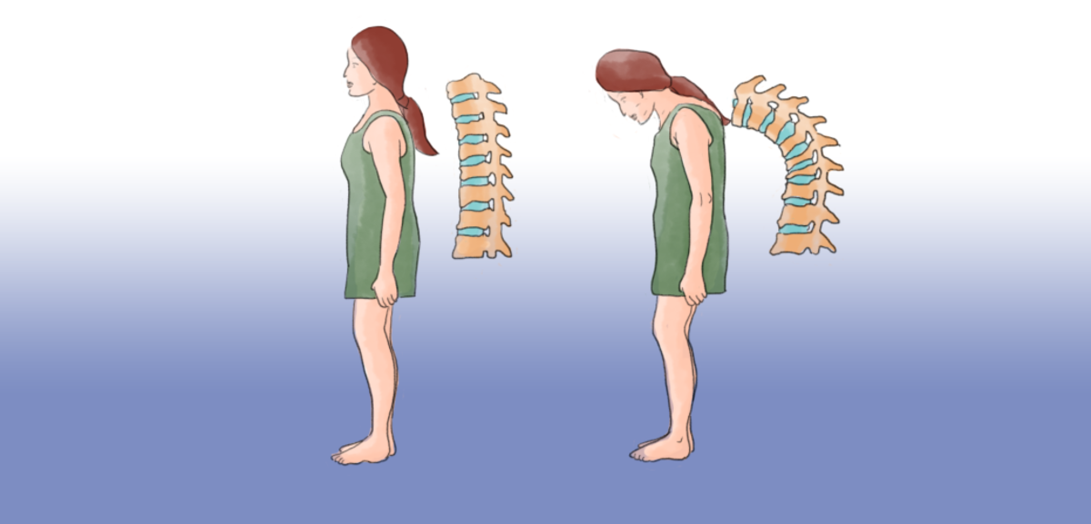 Pain due to osteoporosis can be aggravated by walking.