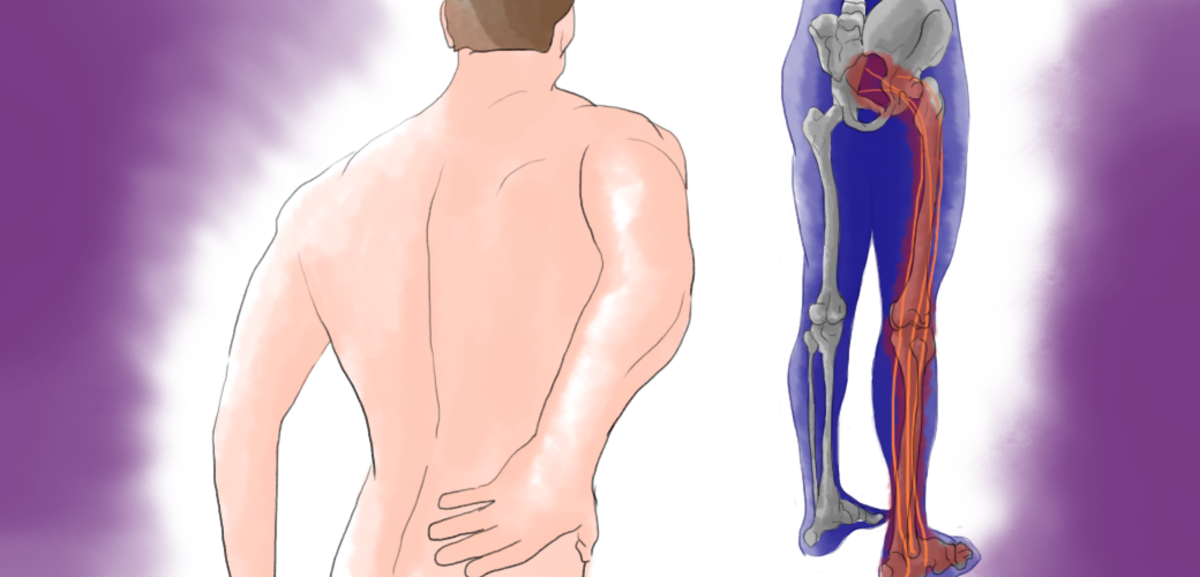 Kidney Pain Vs Lower Back Pain Hubpages