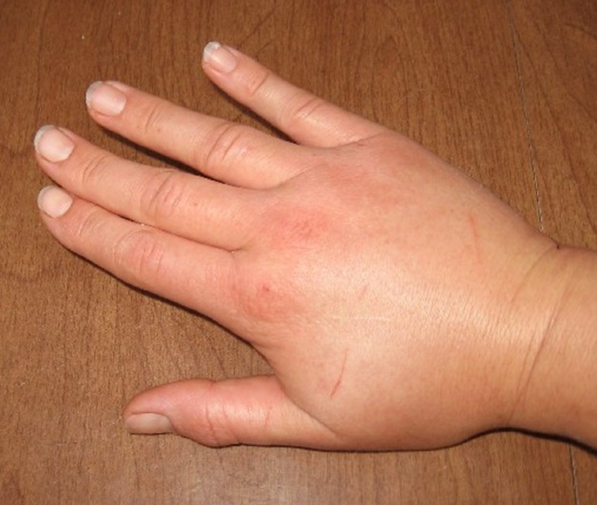 Wasp Sting - Pictures, Symptoms, Causes, Treatment