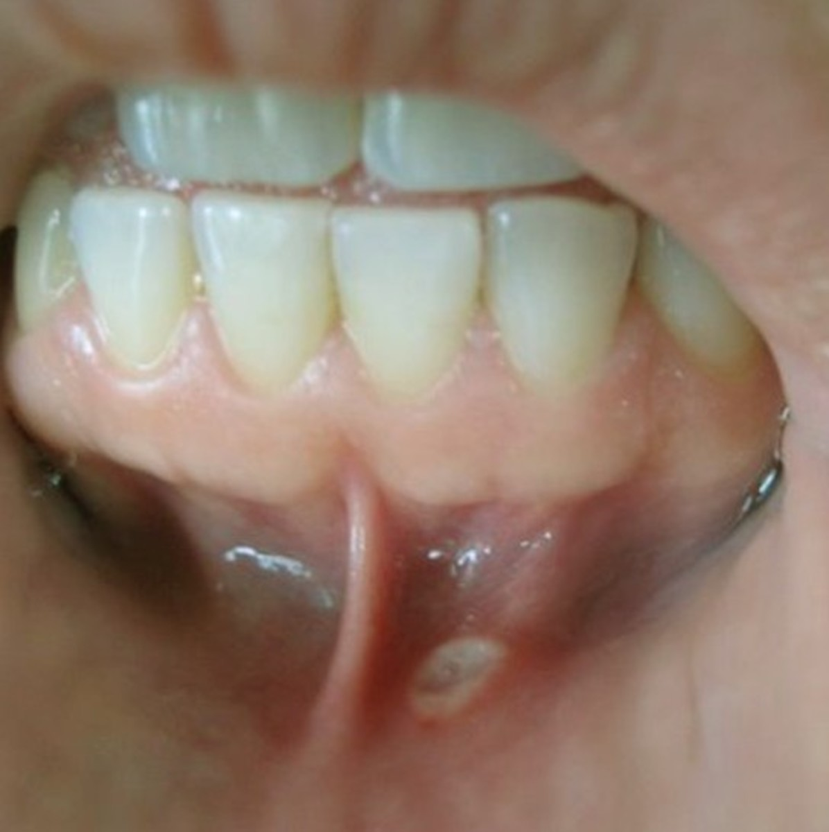 Canker Sores in Mouth - Pictures, Causes, Treatment, Home Remedies
