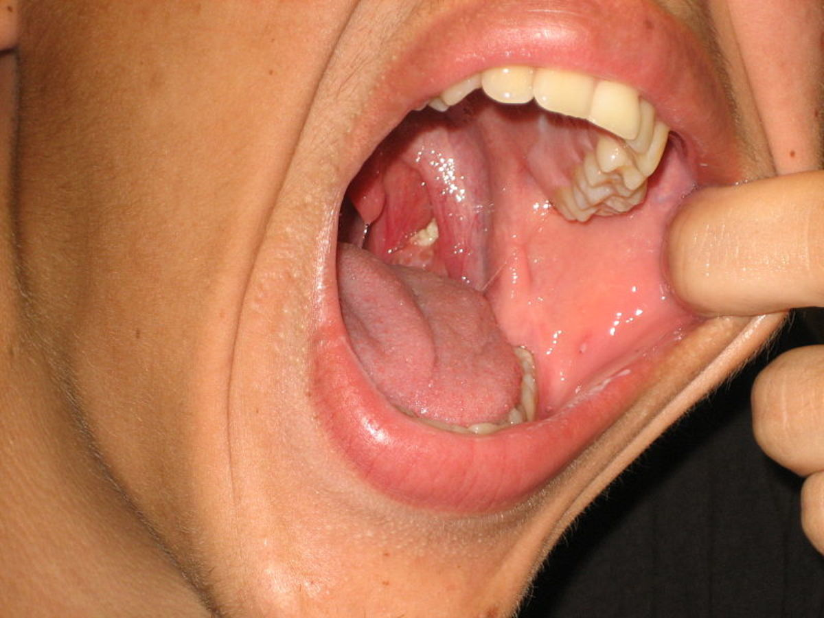 How to Get Rid of Tonsil Stones Forever