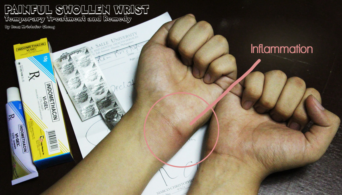 Illustration of Swollen Wrist and Temporary Treatment Medicines and Ointment