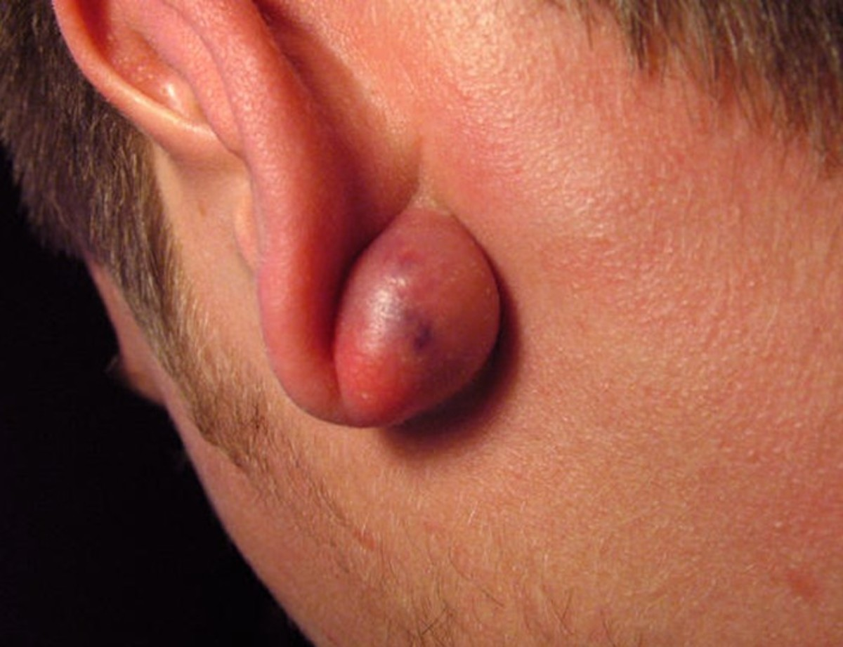 Causes, Treatments, and Pictures of Lumps Behind the Ear