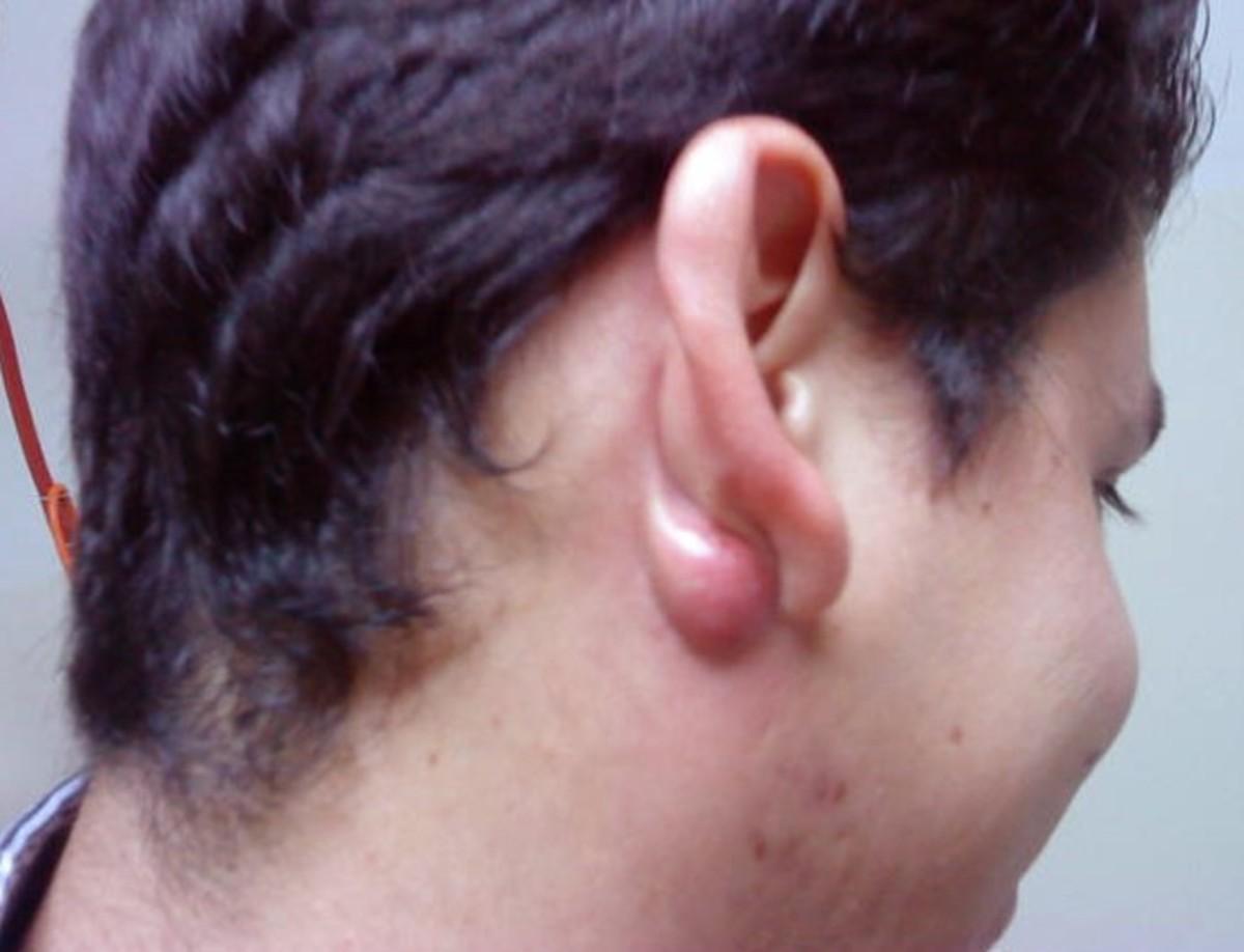 lump-behind-ear