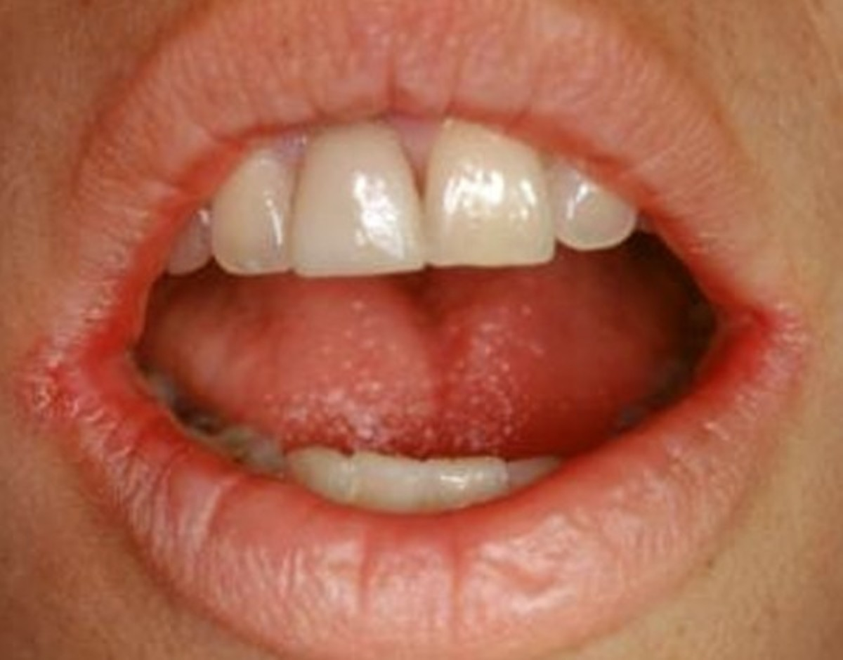Angular Cheilitis - Pictures, Treatment, Symptoms, Causes