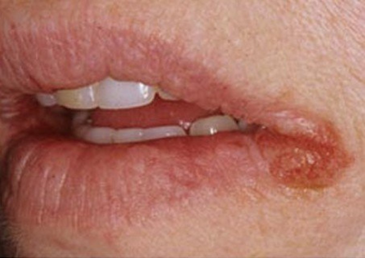 split tongue infection