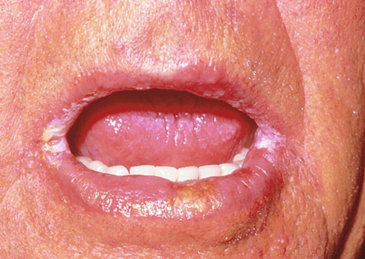 angular-cheilitis