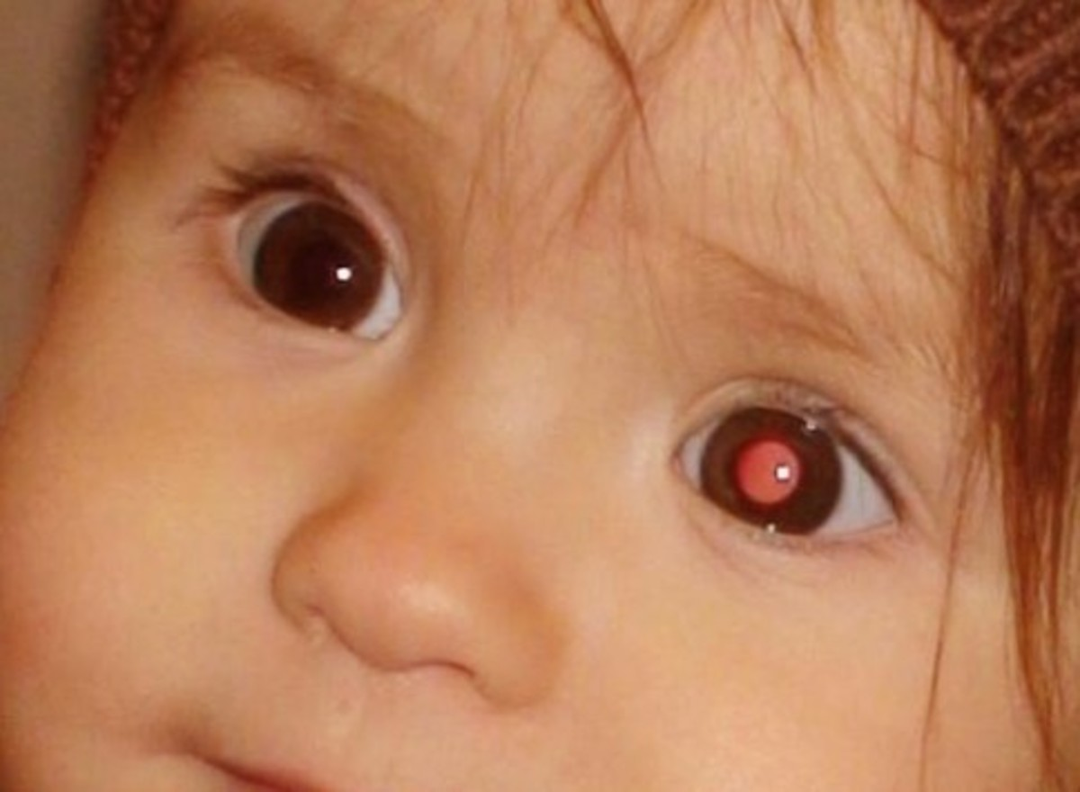 Retinoblastoma - Pictures, Treatment, Causes, Stages, Symptoms