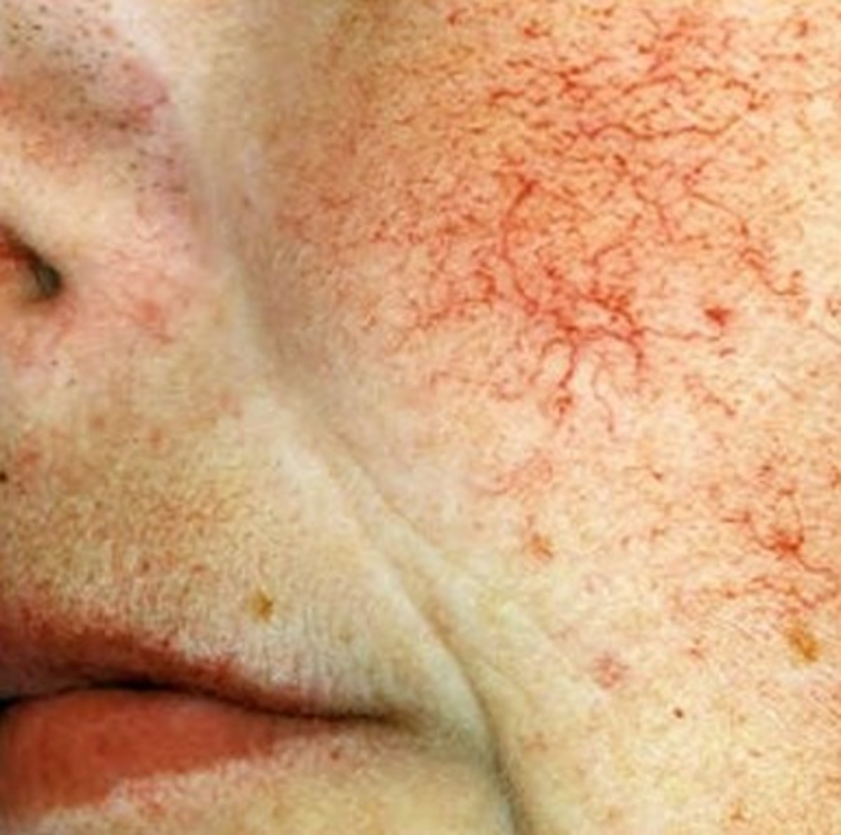 Telangiectasia - Pictures, Symptoms, Causes, Treatment