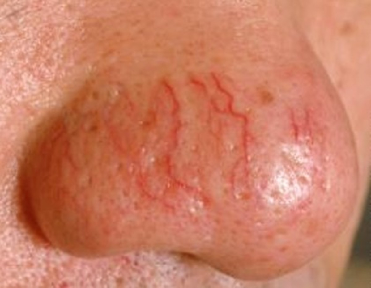 Telangiectasia in Adults: Condition, Treatments, and ...