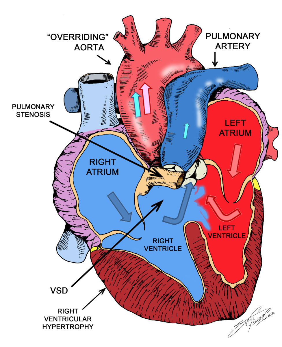 TOF predisposes to infective endocarditis. Some cases may develop aortic regurgitation due to prolapsed of the aortic cusp into the VSD. In adults with TOF, congestive heart failure may occur.