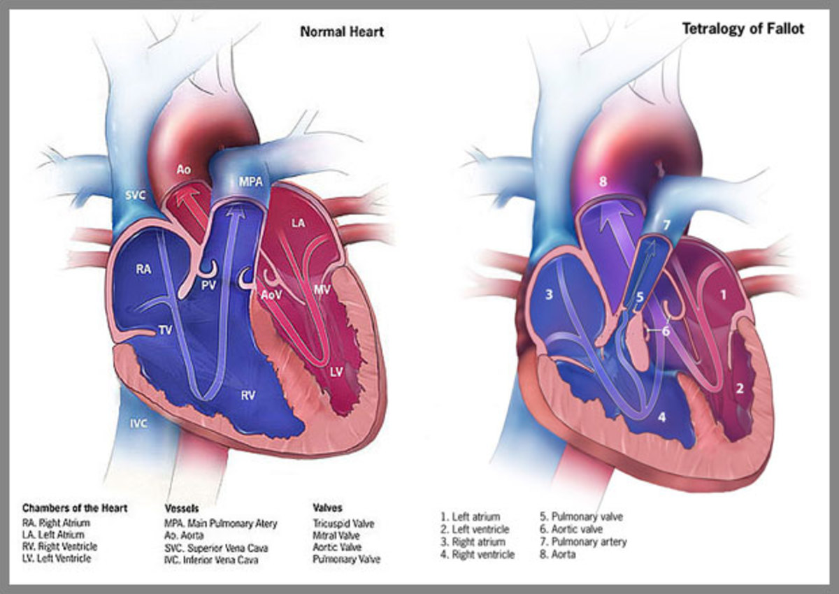 The essential abnormality in TOF is obstruction to the right ventricular outflow tract associated with ventricular septal defect (VSD).