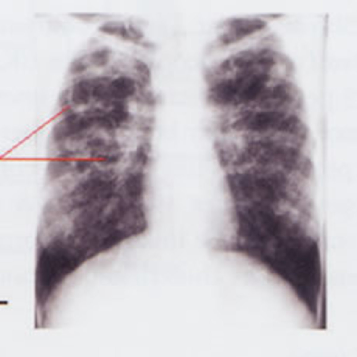 The main function of the Lungs is to provide gas exchange between inspired air (supplying oxygen) and blood in the pulmonary circle.