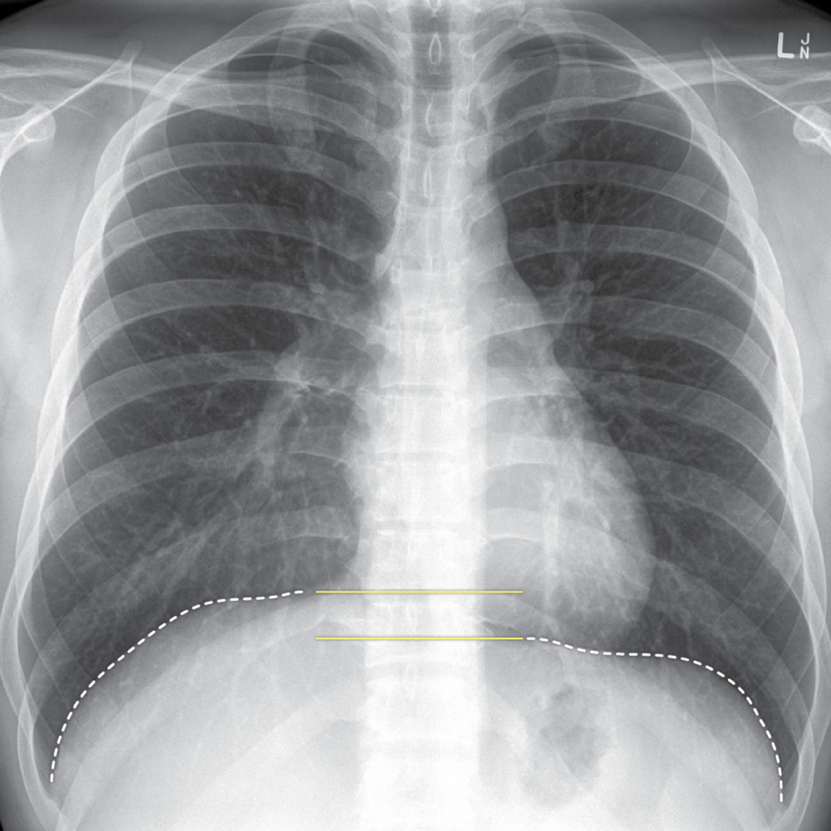 Within the Lungs and Bronchi branch again, forming secondary and tertiary bronchi, then smaller bronchioles and finally terminal bronchioles ending at the alveoli.