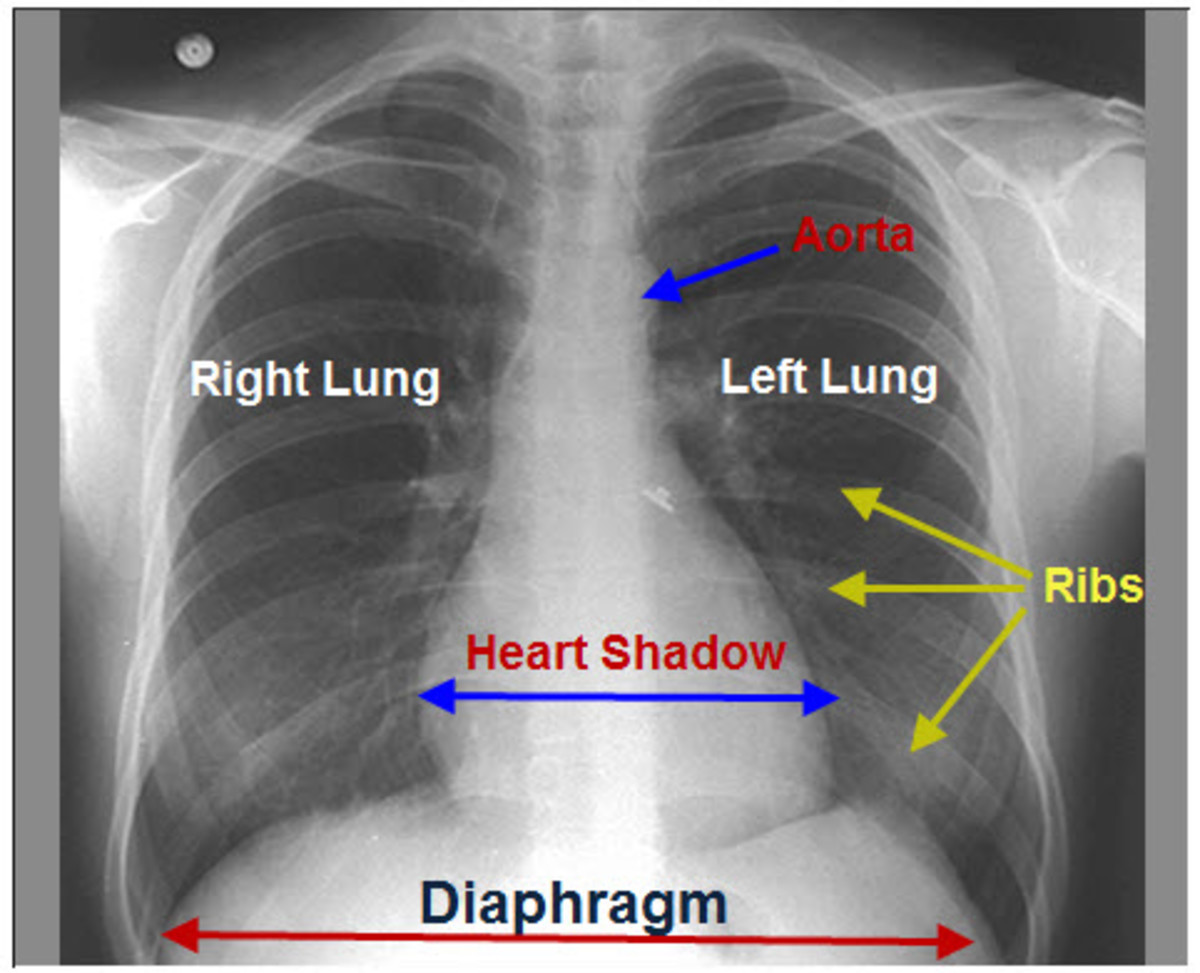 A normal chest x-ray showing all contours, the two lung parenchyma and pulmonary vessels with the bronchi branches