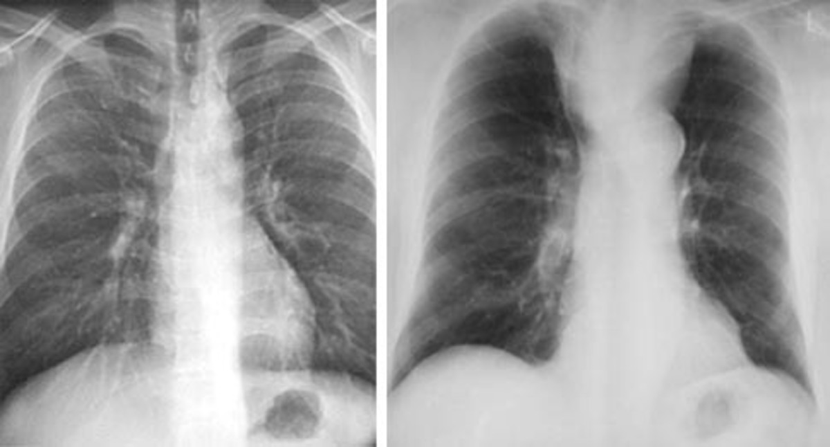 Routine films are taken postero-anteriorly (PA), i.e the fil is placed in front of the patient with the x-ray source behind.