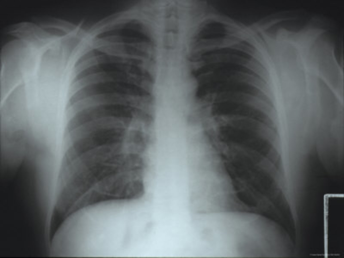 Expanding the lungs gets air around the mucus plugs and makes them easier to cough out. Mucus plugs also are common in people with cystic fibrosis and during severe asthma attacks.