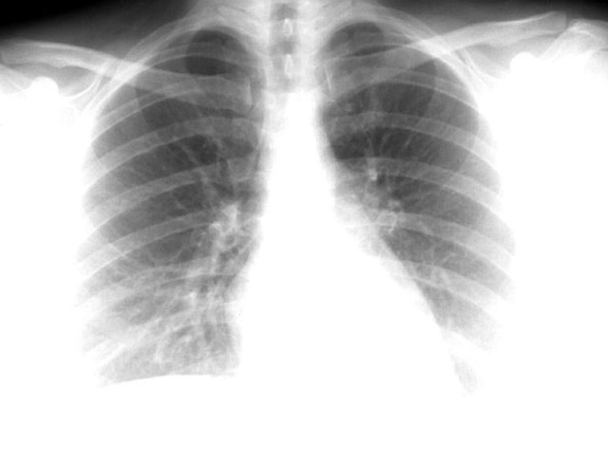 Atelectasis may be an acute or chronic condition. In acute atelectasis, the lung has recently collapsed and is primarily notable only for airlessness. In chronic atelectasis, the affected area is often characterized by a complex mixture of airlessnes