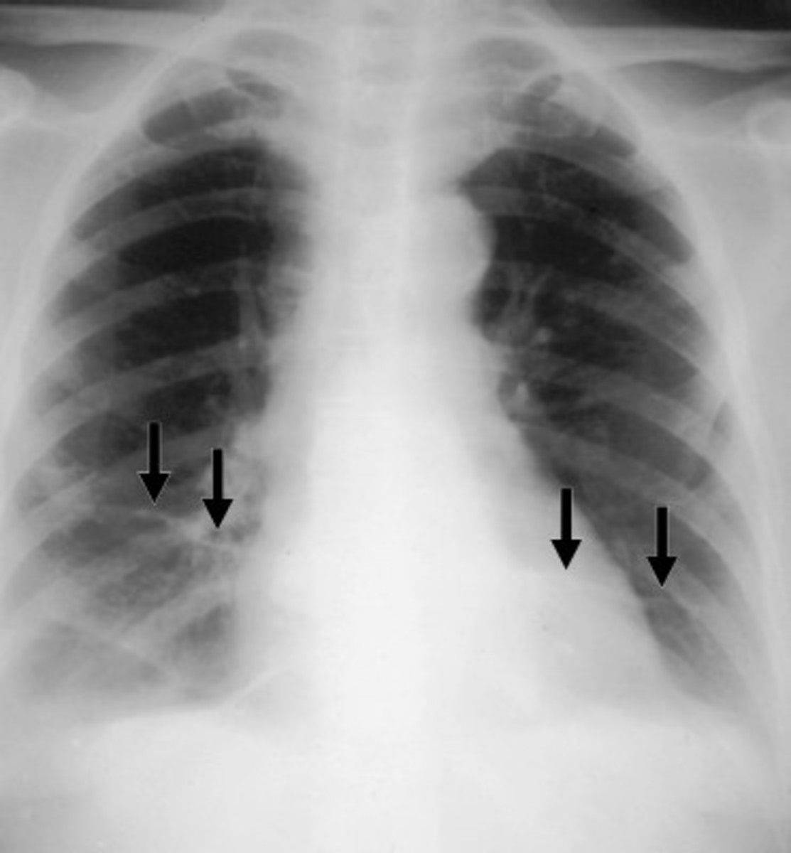 ACD is a genetic disorder. This is known because ACD has been reported in multiple families. There is more than one form of ACD. In some families, a form of ACD known as alveolar capillary dysplasia with misalignment of pulmonary veins (ACD/MPV) has