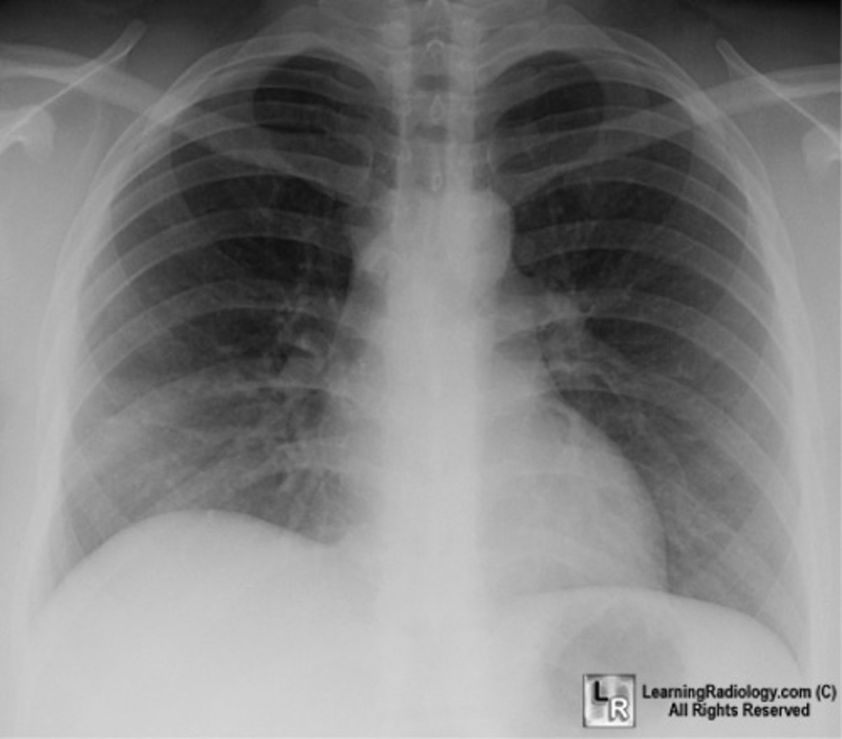 The blocked, contracted lung may develop pneumonia that fails to resolve completely and leads to chronic inflammation, scarring, and bronchiectasis.