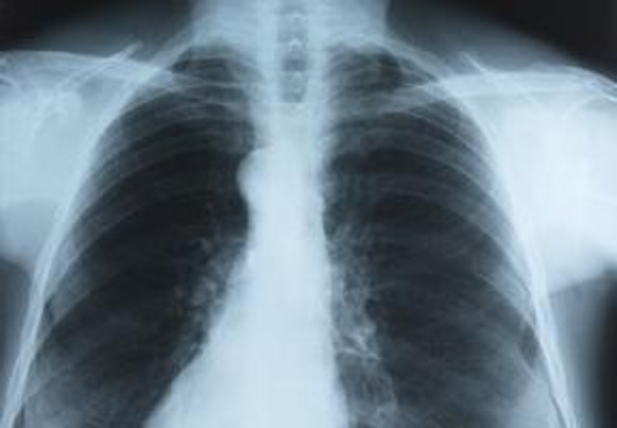 a complete or partial collapse of a lung or lobe of a lung — develops when the tiny air sacs (alveoli) within the lung become deflated. It is one of the most common breathing (respiratory) complications after surgery.