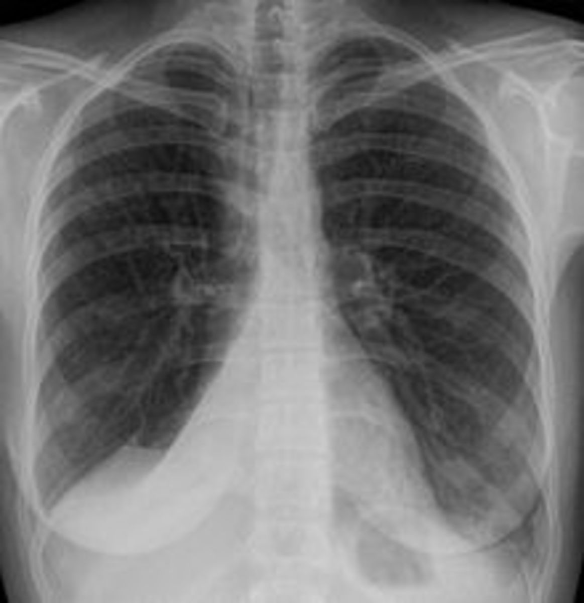 Rounded atelectasis is usually a complication of asbestos-induced disease of the pleura, but it may also result from other types of chronic scarring and thickening of the pleura.