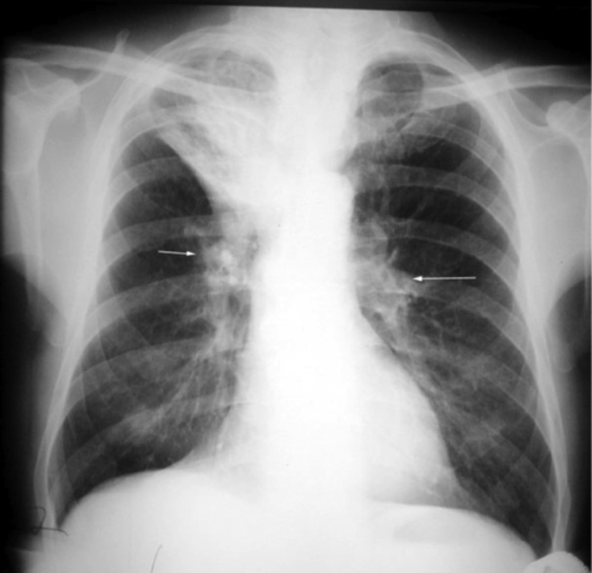 Acute atelectasis may occur as a post-operative complication or as a result of surfactant deficiency. In premature neonates, this leads to infant respiratory distress syndrome.