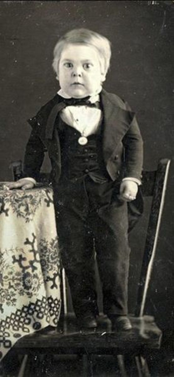 "Charles Sherwood Stratton was born 4 January 1838, and his growth virtually stopped at six months, reaching only one meter at adulthood. He was picked up by P.T. Barnum and became a huge circus success as ""General Tom Thumb."""
