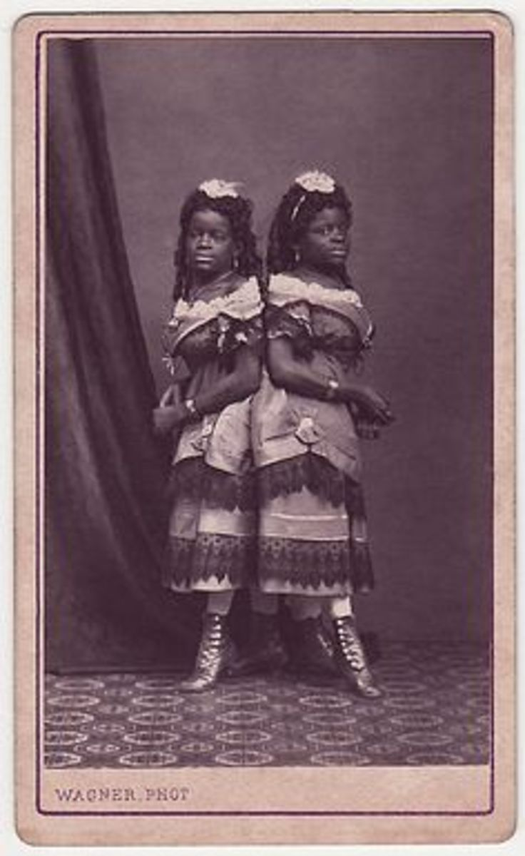 Millie and Christine McCoy (1851-1912) were conjoined twins born into slavery. They and their mother were sold to a showman, Joseph Smith. Smith and his wife educated the girls; they eventually could speak five languages, dance, play music, and sing.