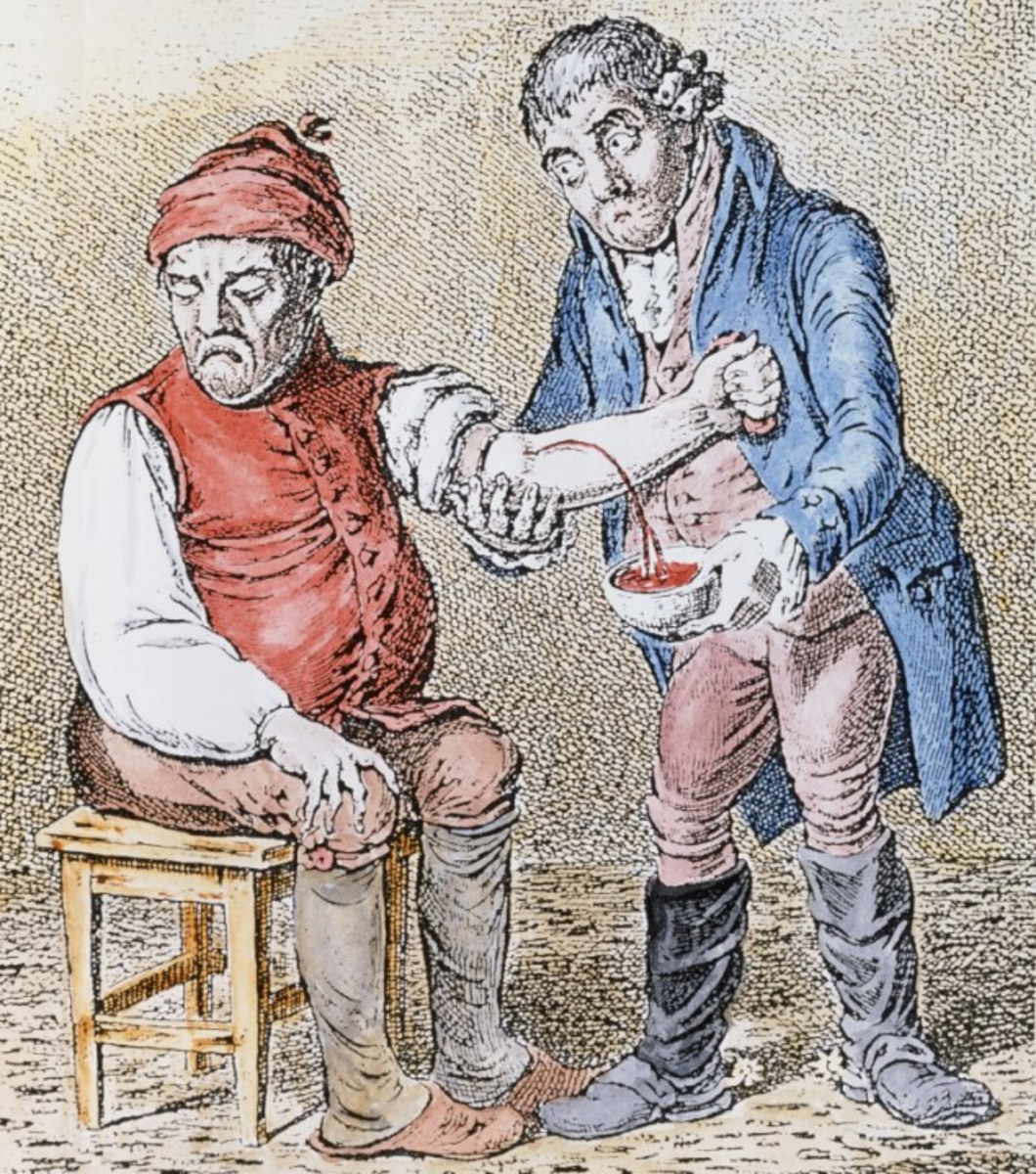 Draining blood was a common method for centuries, hoping to drain out the sickness!