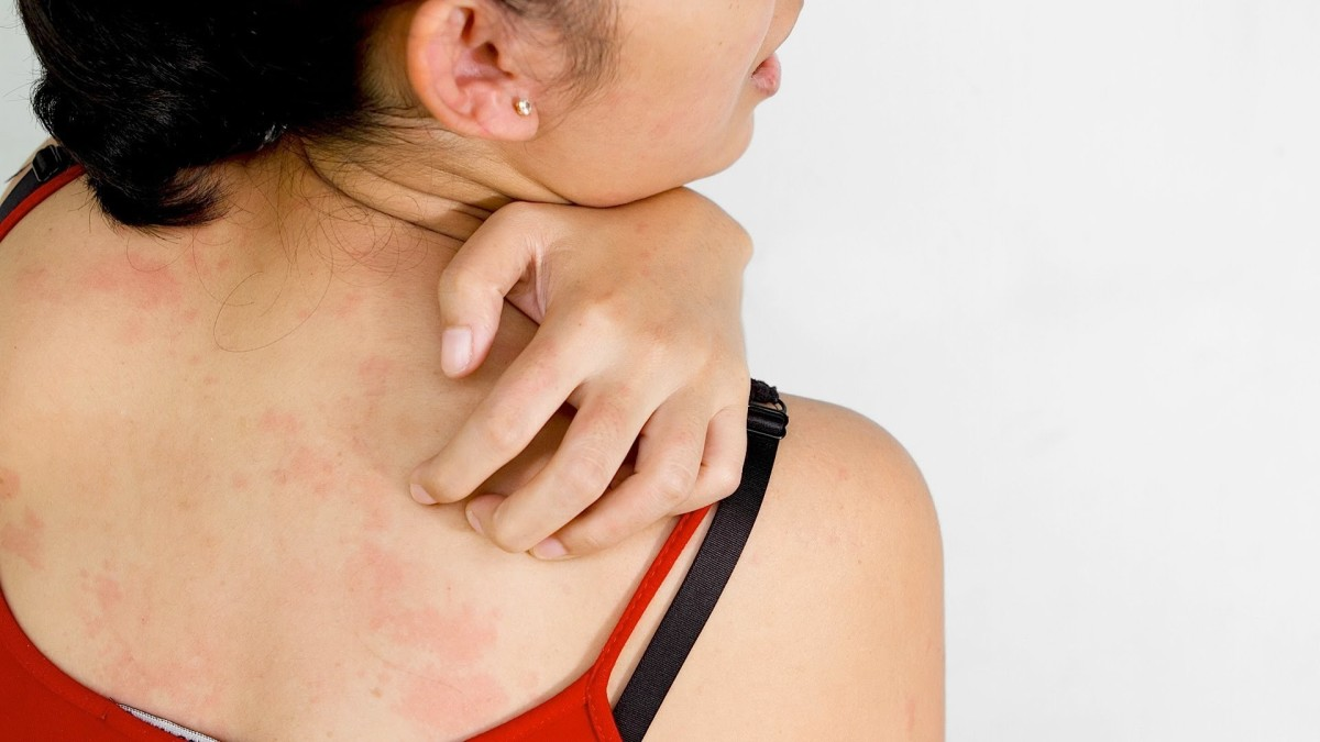 causes-and-treatment-options-for-hives