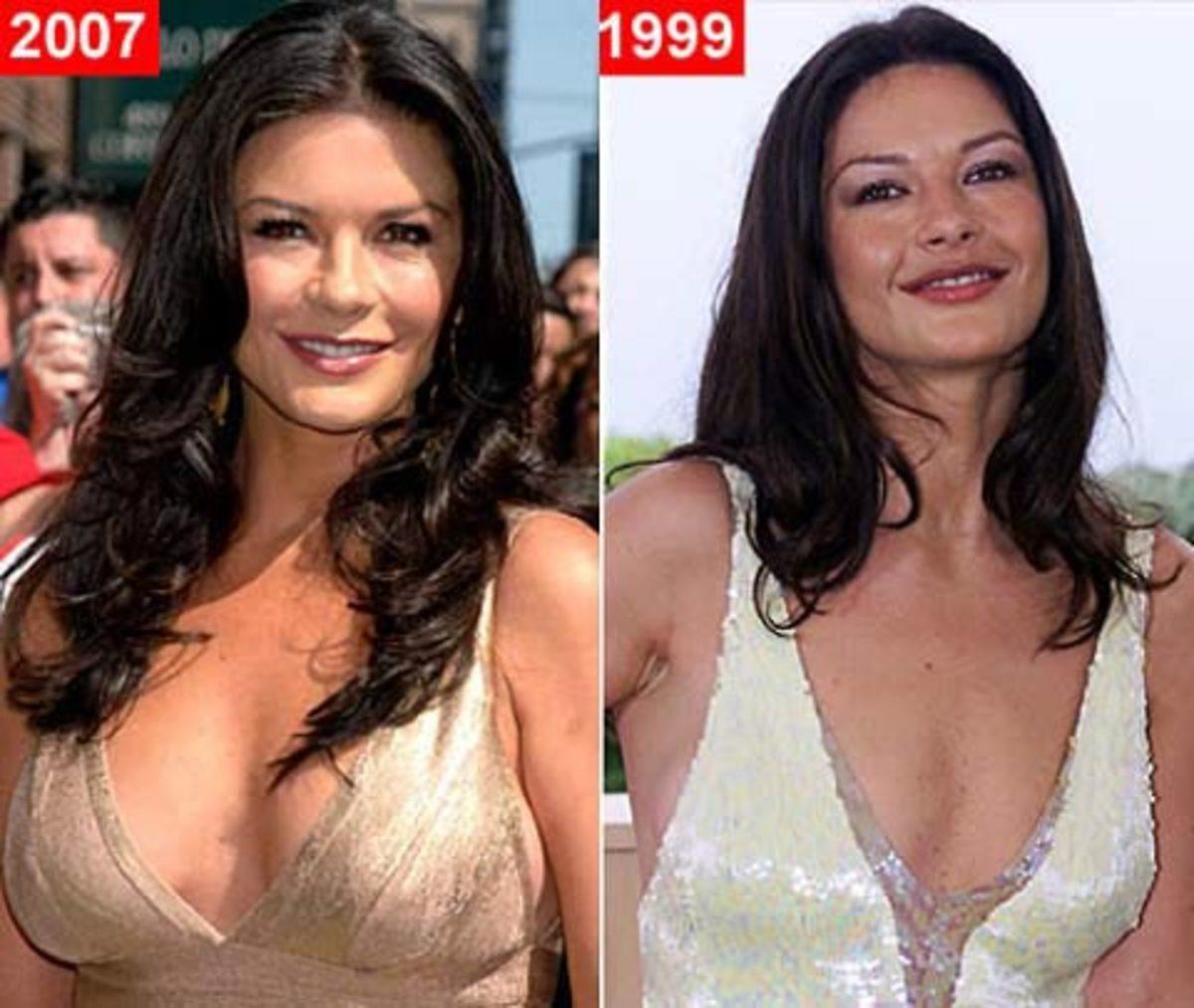 Catherine Zeta Jones Plastic Surgery Before & After Look