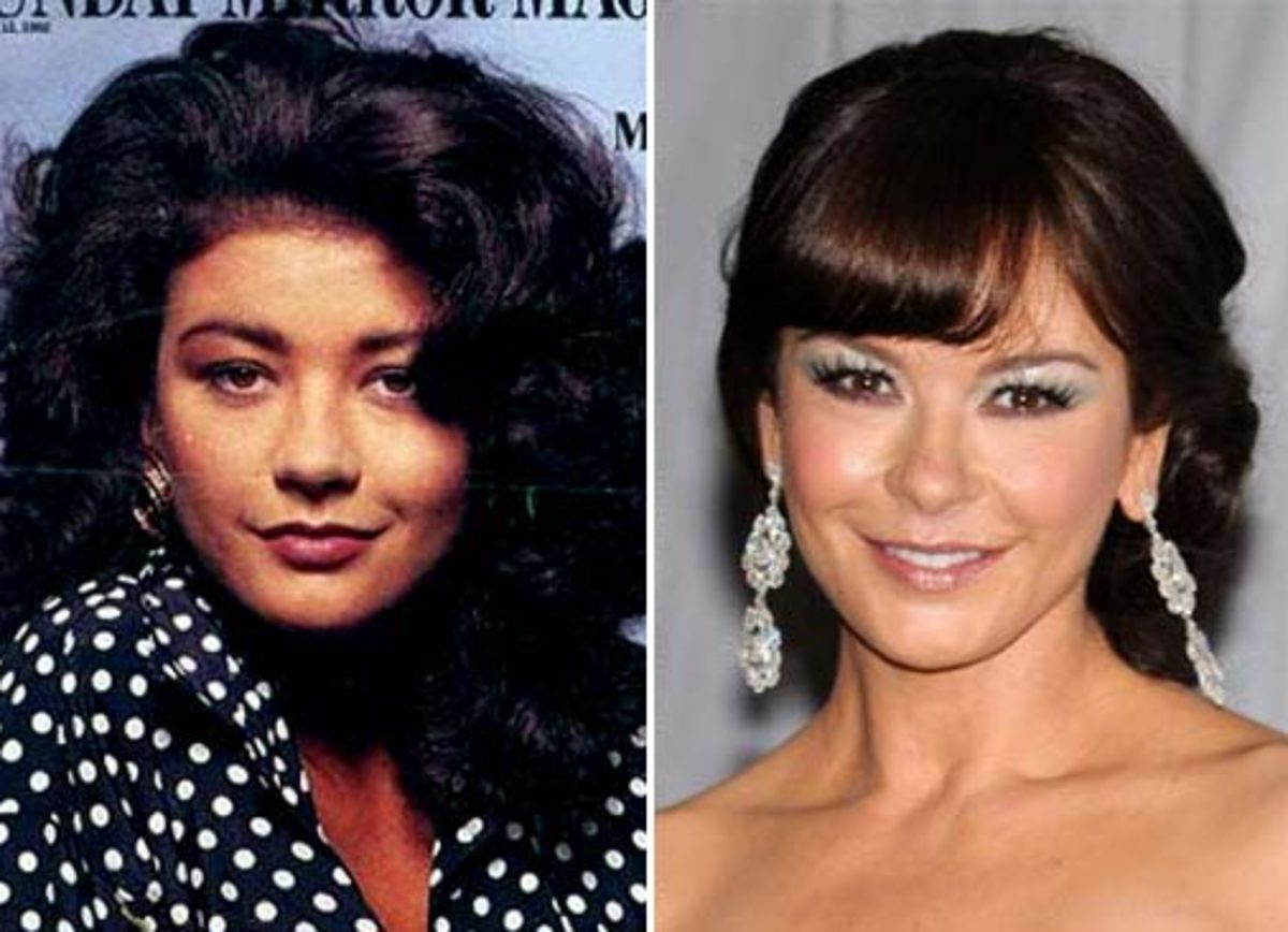 Catherine Zeta Before & After Botox Injection