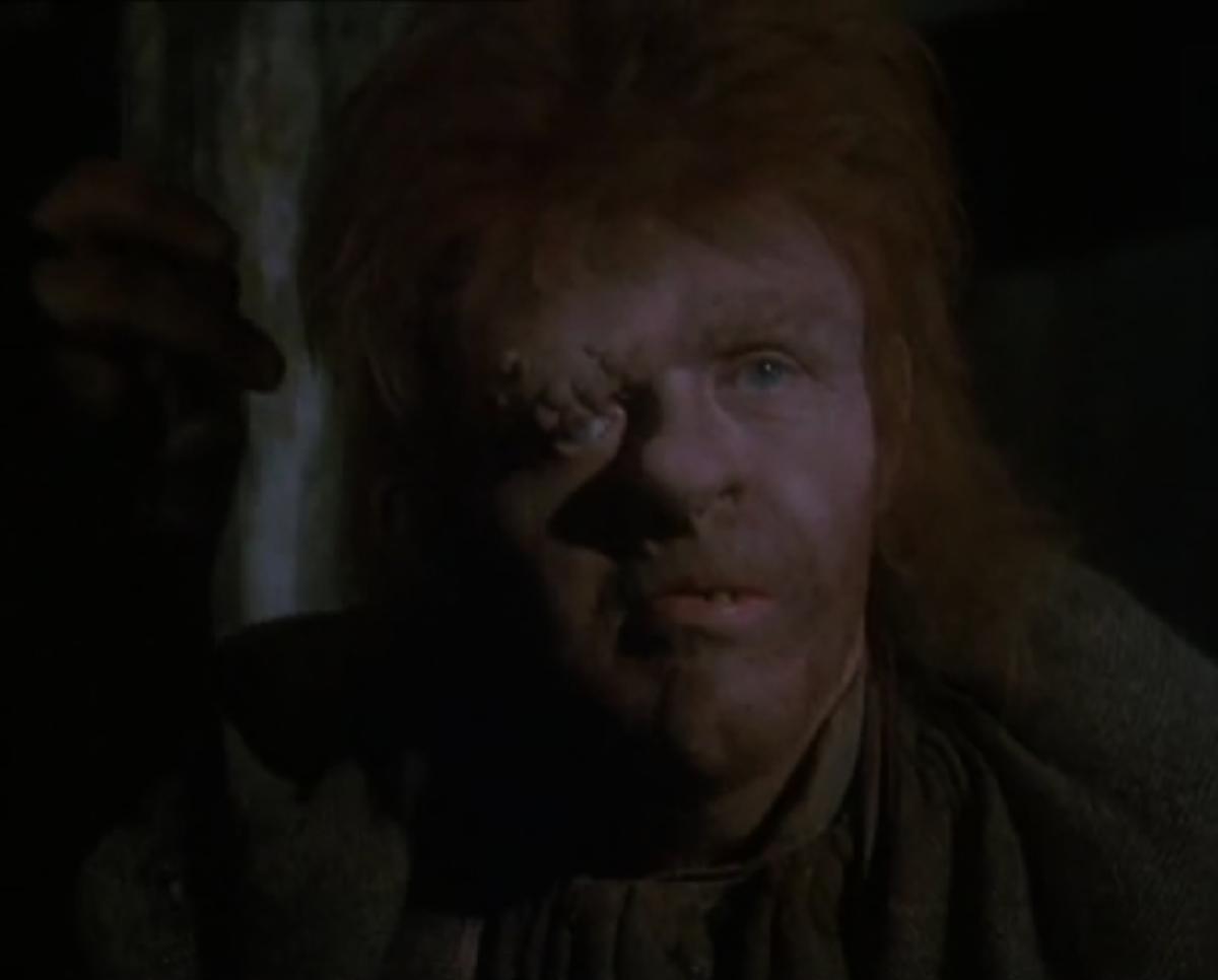 Anthony Hopkins as Quasimodo, 1982 Version